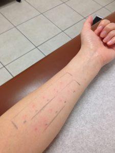 アレルギーテスト